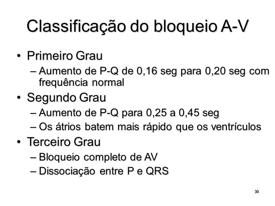 Classificação do bloqueio A-V