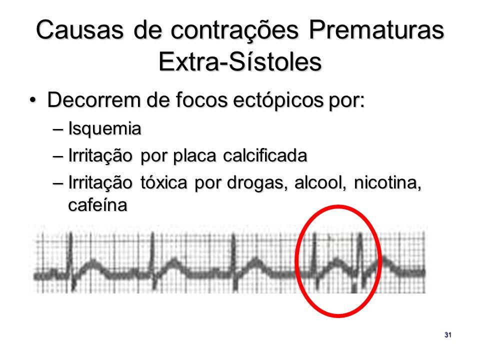 Causas de contrações Prematuras Extra-Sístoles