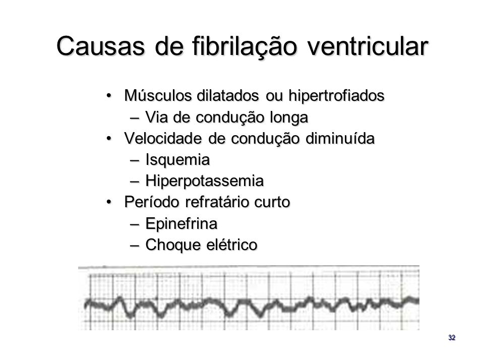 Causas de fibrilação ventricular