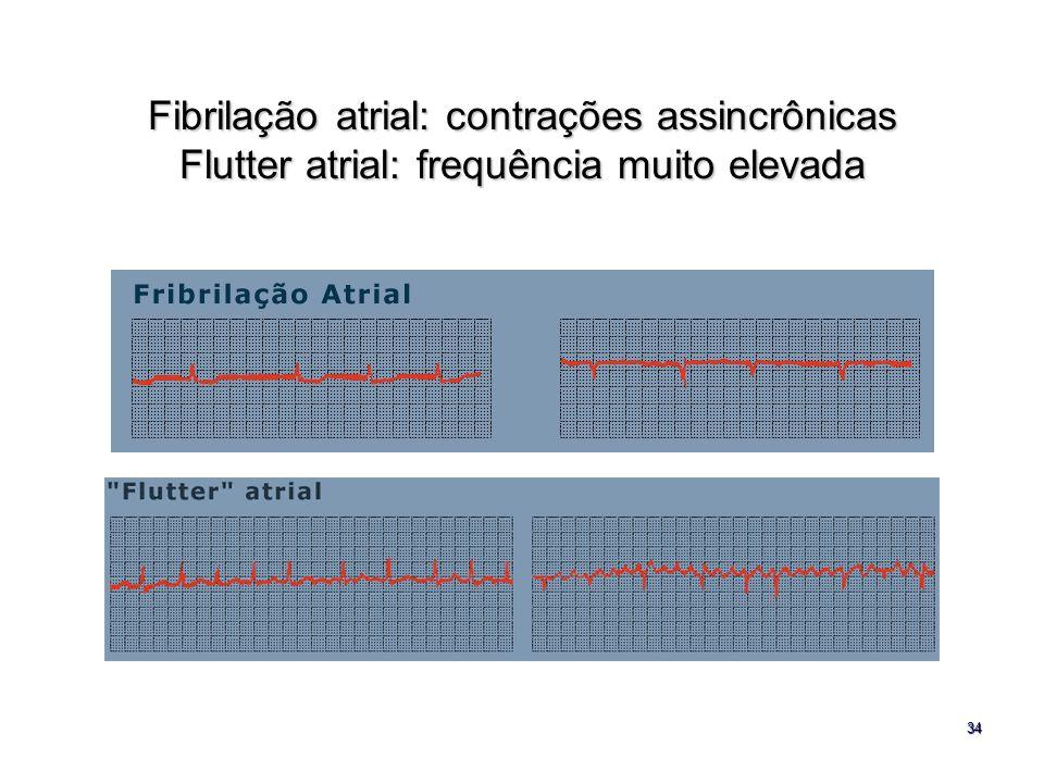 Fibrilação atrial: contrações assincrônicas Flutter atrial: frequência muito elevada