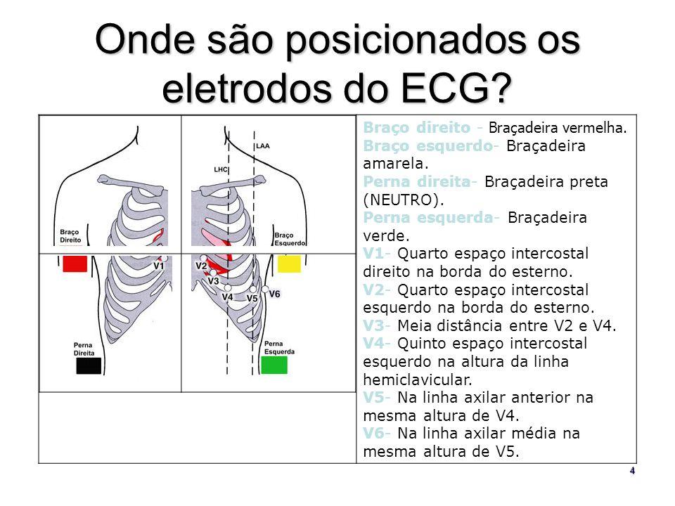 Onde são posicionados os eletrodos do ECG