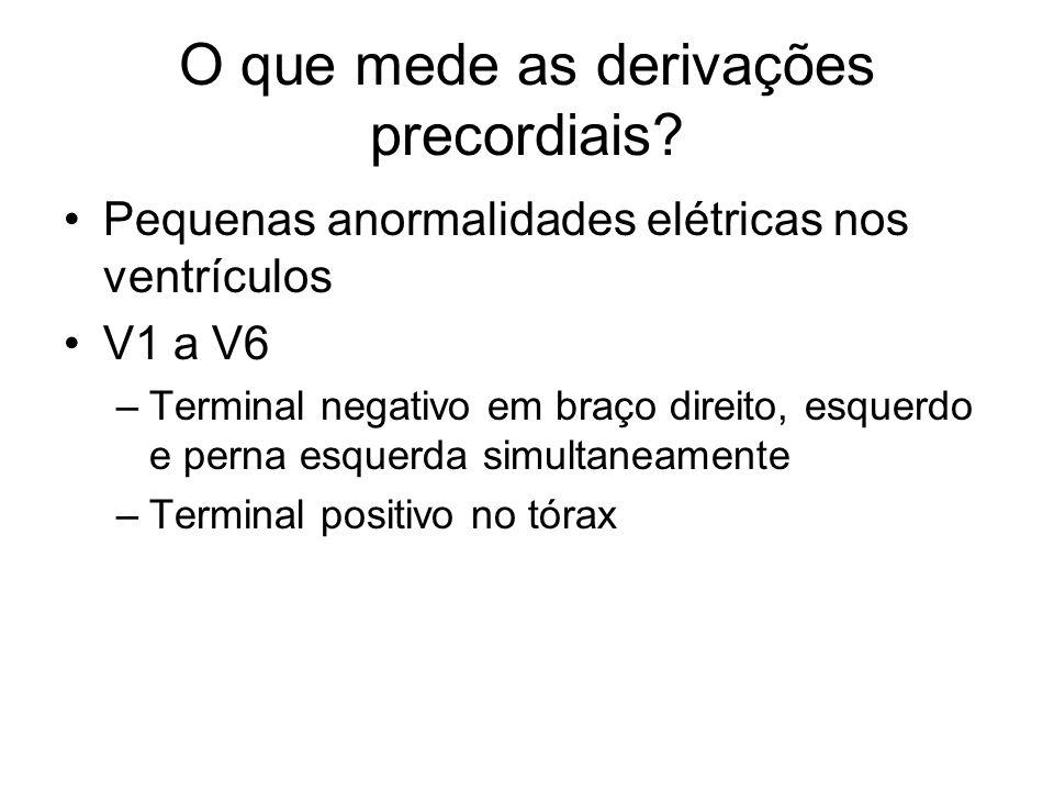 O que mede as derivações precordiais