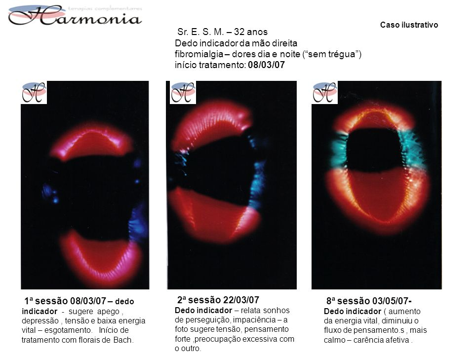 Caso ilustrativo Sr. E. S. M. – 32 anos. Dedo indicador da mão direita fibromialgia – dores dia e noite ( sem trégua ) início tratamento: 08/03/07.