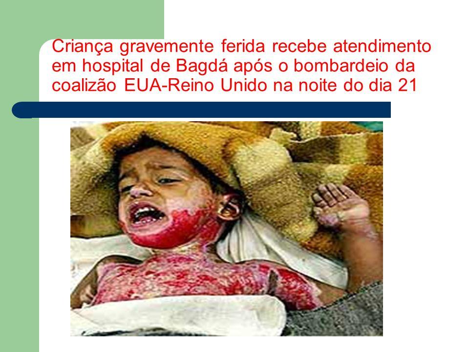 Criança gravemente ferida recebe atendimento em hospital de Bagdá após o bombardeio da coalizão EUA-Reino Unido na noite do dia 21
