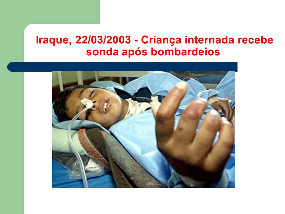 Iraque, 22/03/2003 - Criança internada recebe sonda após bombardeios