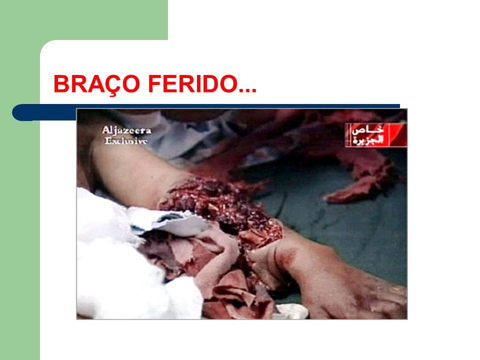 BRAÇO FERIDO...