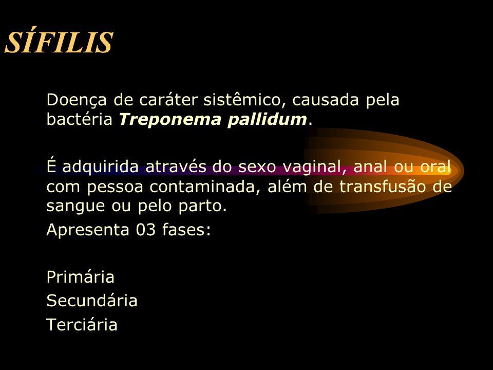SÍFILIS Doença de caráter sistêmico, causada pela bactéria Treponema pallidum.