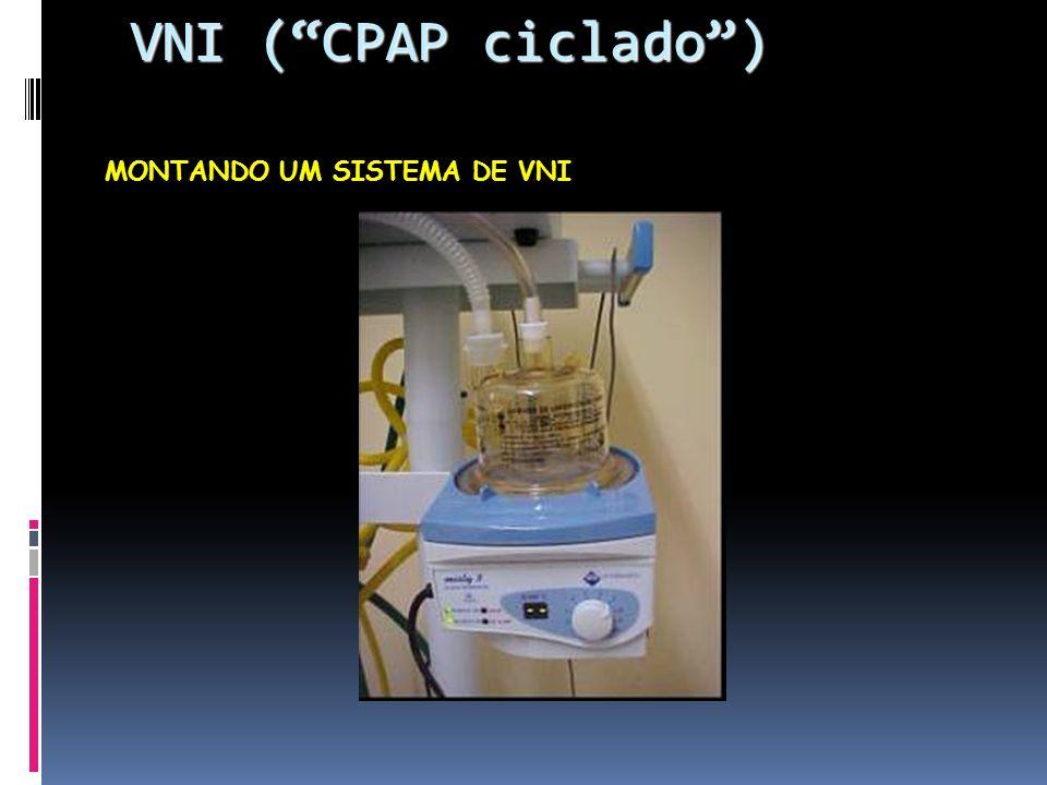 VNI ( CPAP ciclado ) MONTANDO UM SISTEMA DE VNI