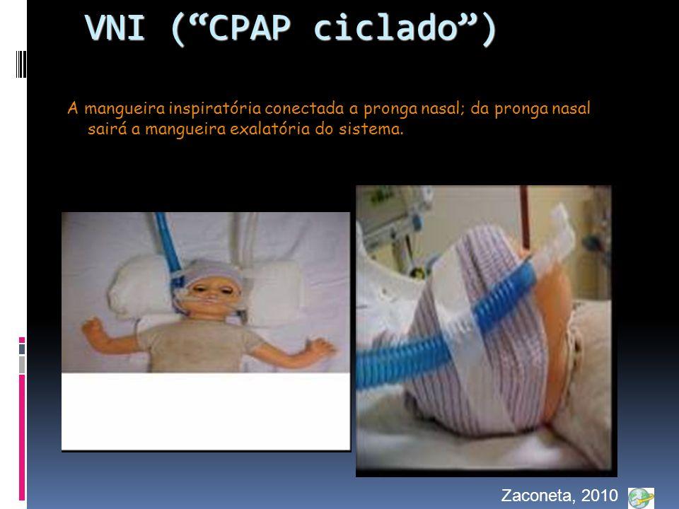 VNI ( CPAP ciclado ) A mangueira inspiratória conectada a pronga nasal; da pronga nasal sairá a mangueira exalatória do sistema.