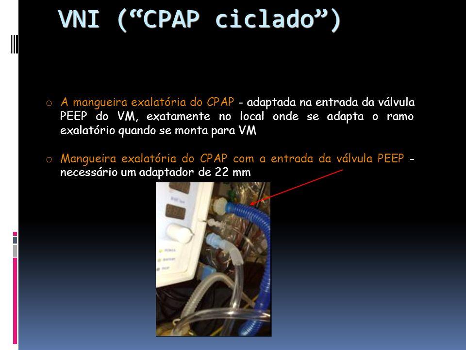 VNI ( CPAP ciclado )