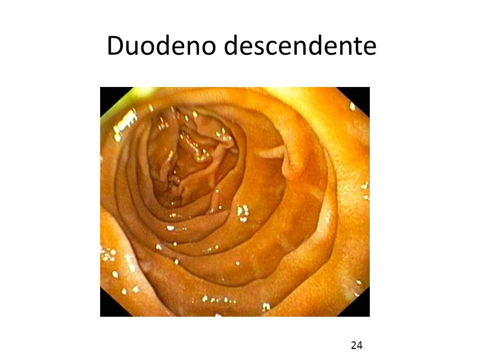 Duodeno descendente