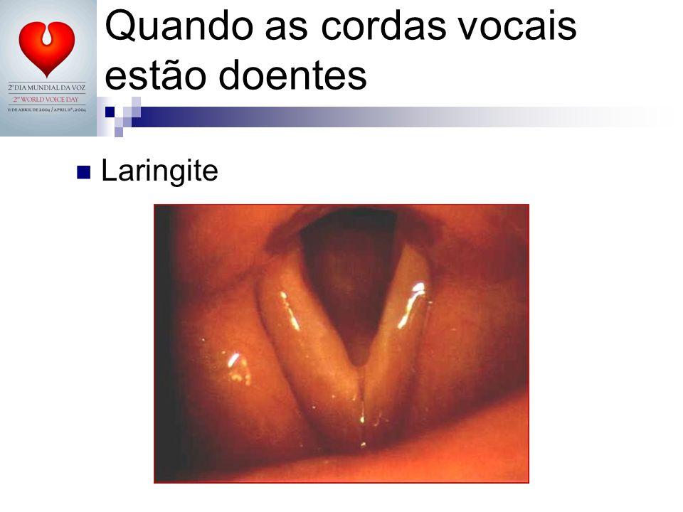 Quando as cordas vocais estão doentes