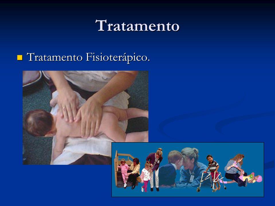 Tratamento Tratamento Fisioterápico.