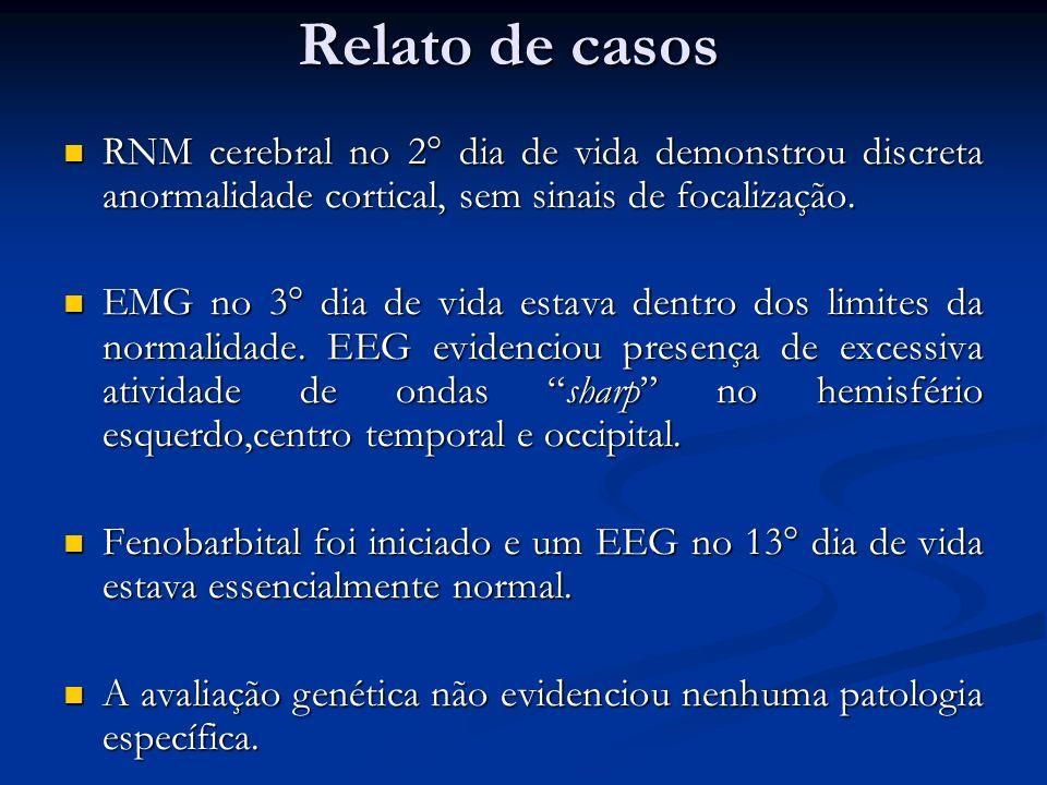 Relato de casos RNM cerebral no 2° dia de vida demonstrou discreta anormalidade cortical, sem sinais de focalização.