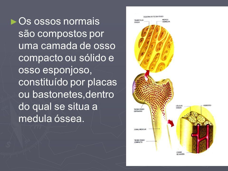 Os ossos normais são compostos por uma camada de osso compacto ou sólido e osso esponjoso, constituído por placas ou bastonetes,dentro do qual se situa a medula óssea.