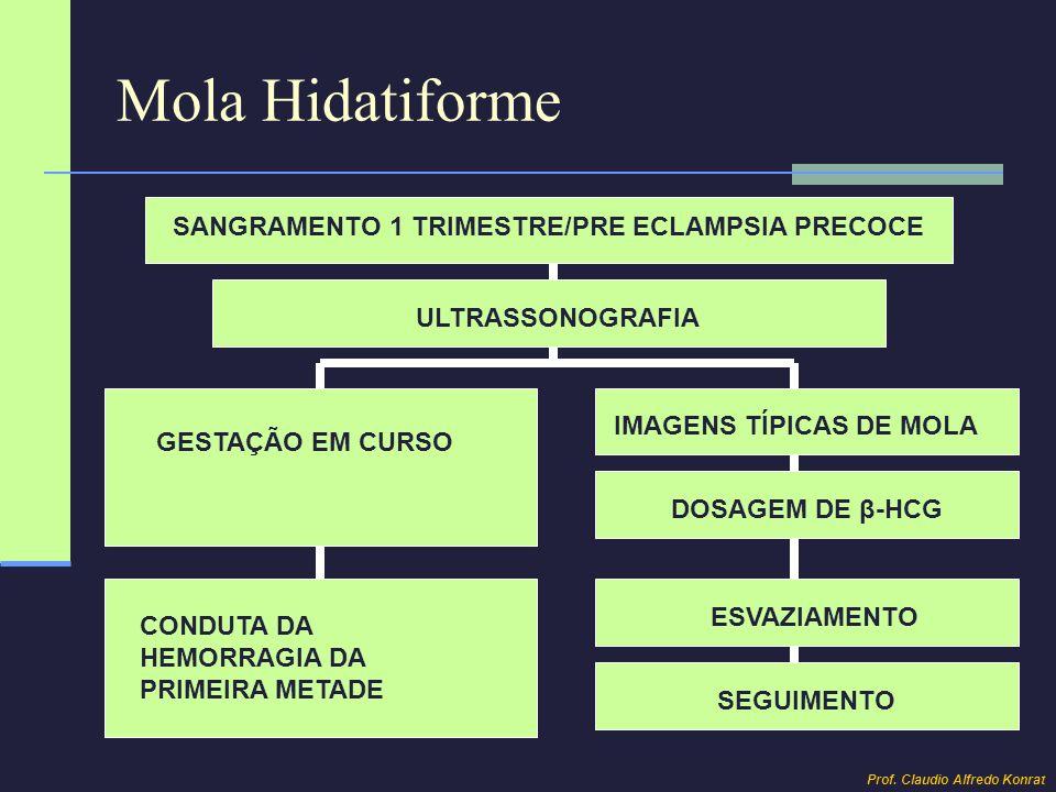 Mola Hidatiforme SANGRAMENTO 1 TRIMESTRE/PRE ECLAMPSIA PRECOCE