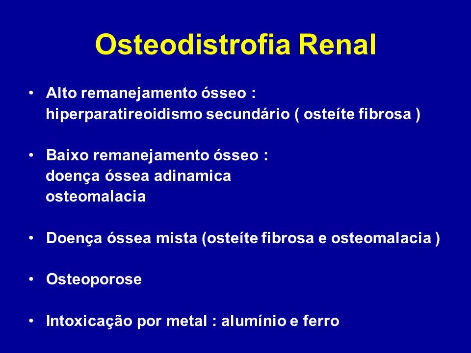 Osteodistrofia Renal Alto remanejamento ósseo :