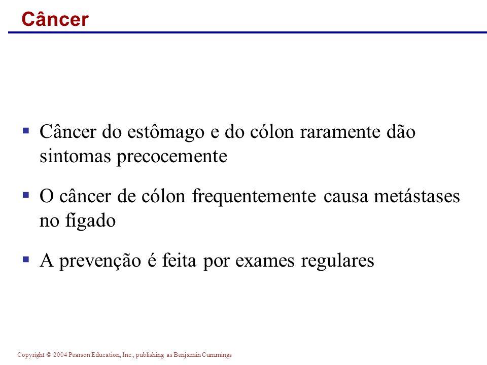 Câncer do estômago e do cólon raramente dão sintomas precocemente