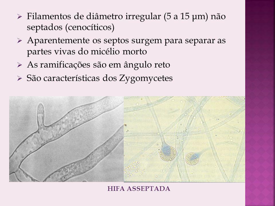 As ramificações são em ângulo reto São características dos Zygomycetes