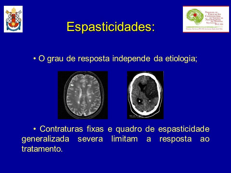 Espasticidades: • O grau de resposta independe da etiologia;