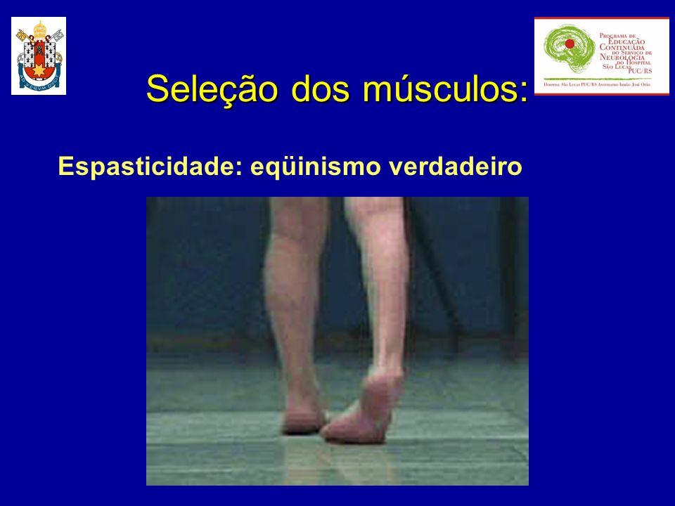 Seleção dos músculos: Espasticidade: eqüinismo verdadeiro