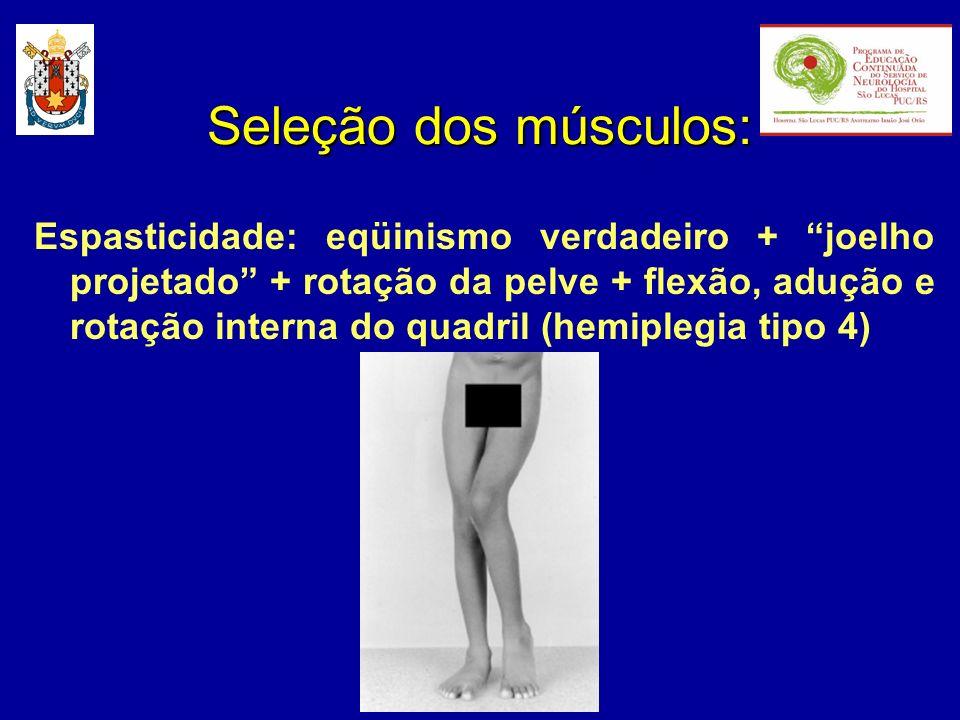 Seleção dos músculos:
