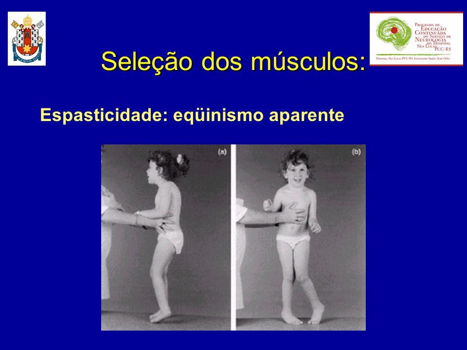 Seleção dos músculos: Espasticidade: eqüinismo aparente