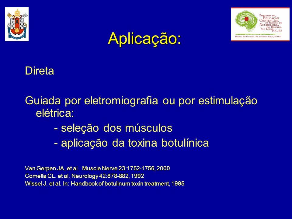Aplicação:Direta. Guiada por eletromiografia ou por estimulação elétrica: - seleção dos músculos. - aplicação da toxina botulínica.