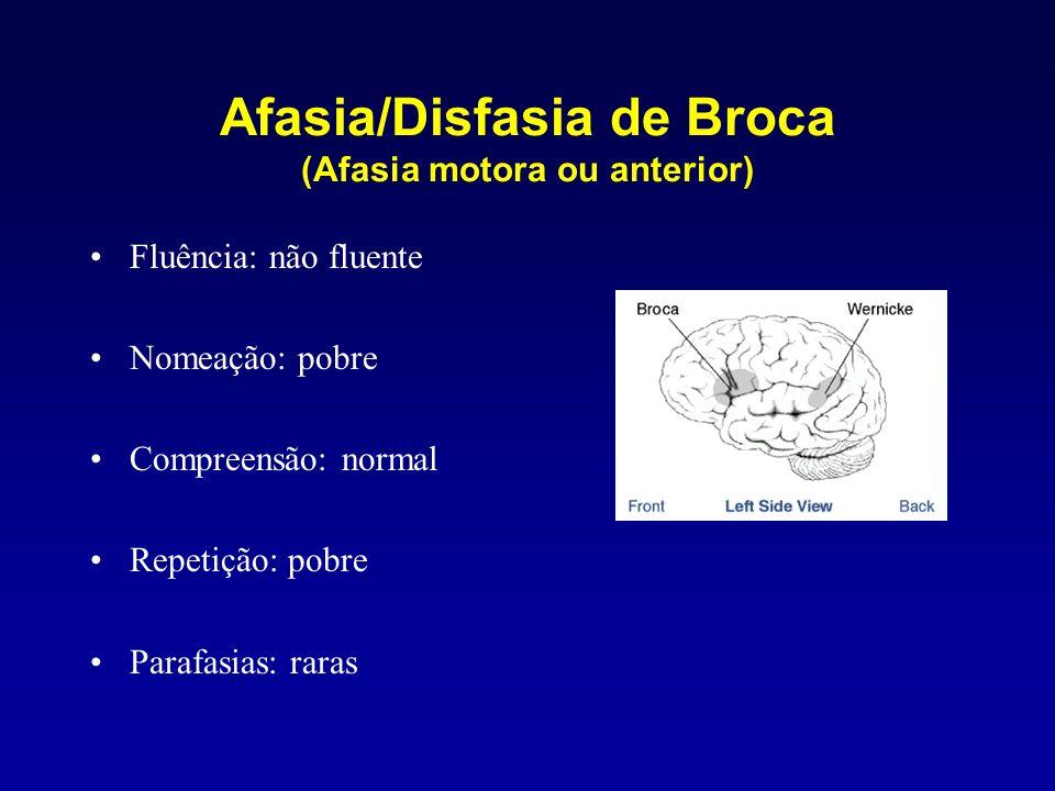 Afasia/Disfasia de Broca (Afasia motora ou anterior)