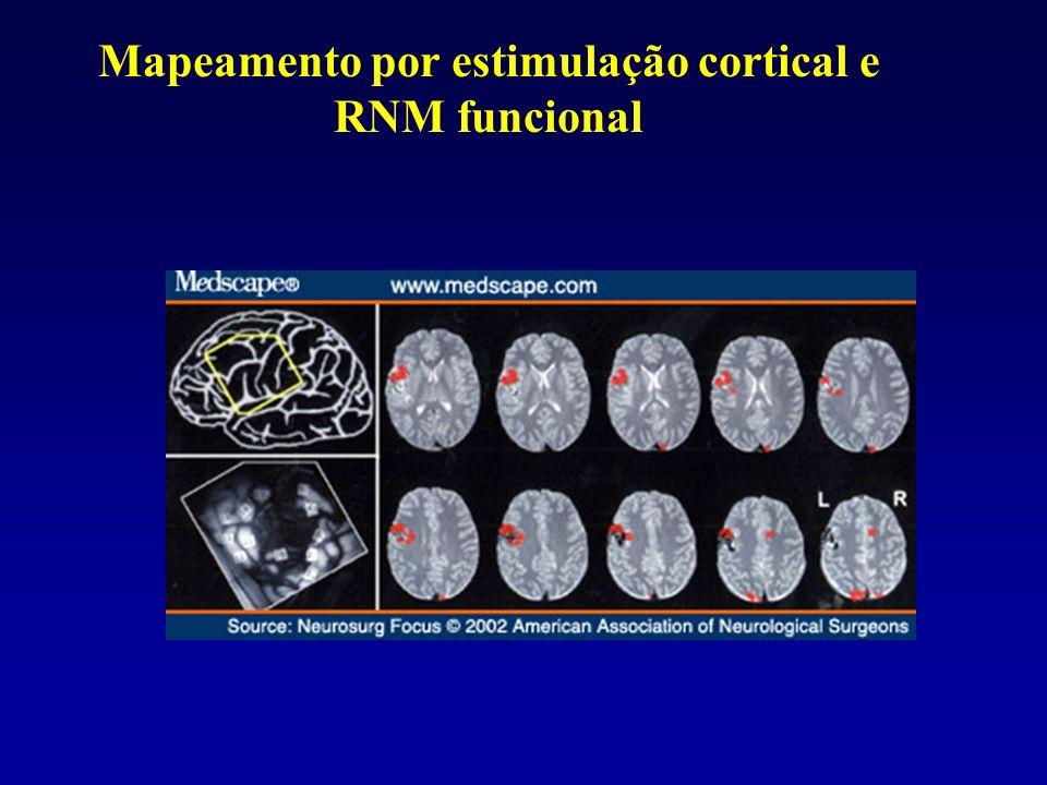 Mapeamento por estimulação cortical e RNM funcional