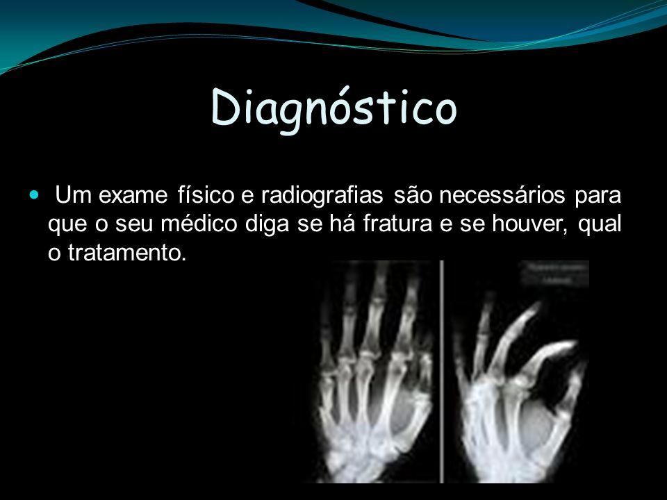 Diagnóstico Um exame físico e radiografias são necessários para que o seu médico diga se há fratura e se houver, qual o tratamento.