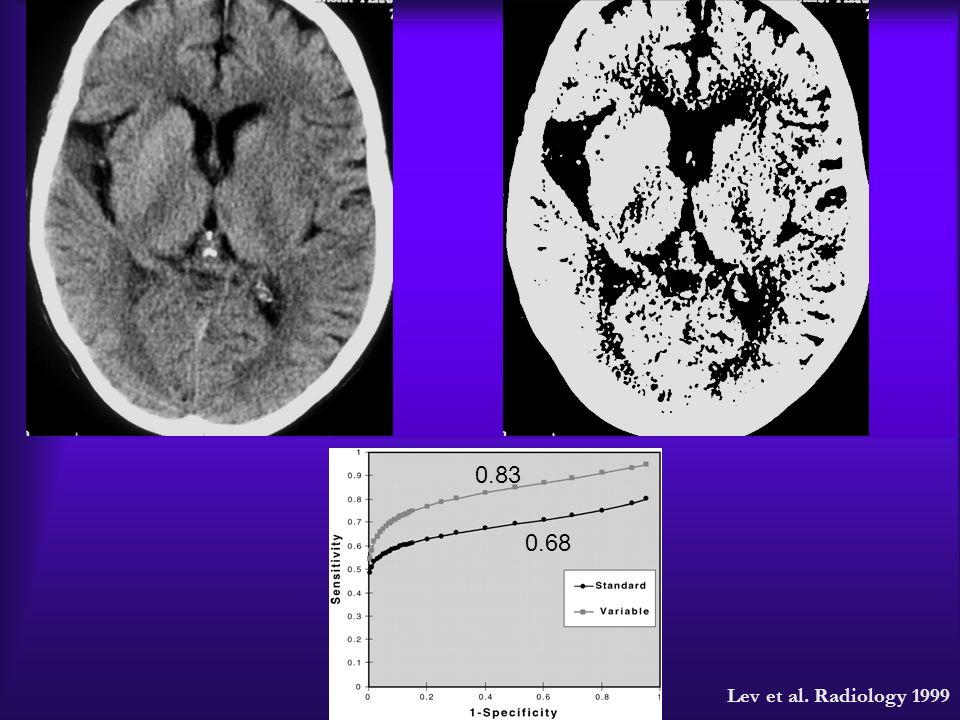 0.83 0.68 0.68 0.83 Lev et al. Radiology 1999