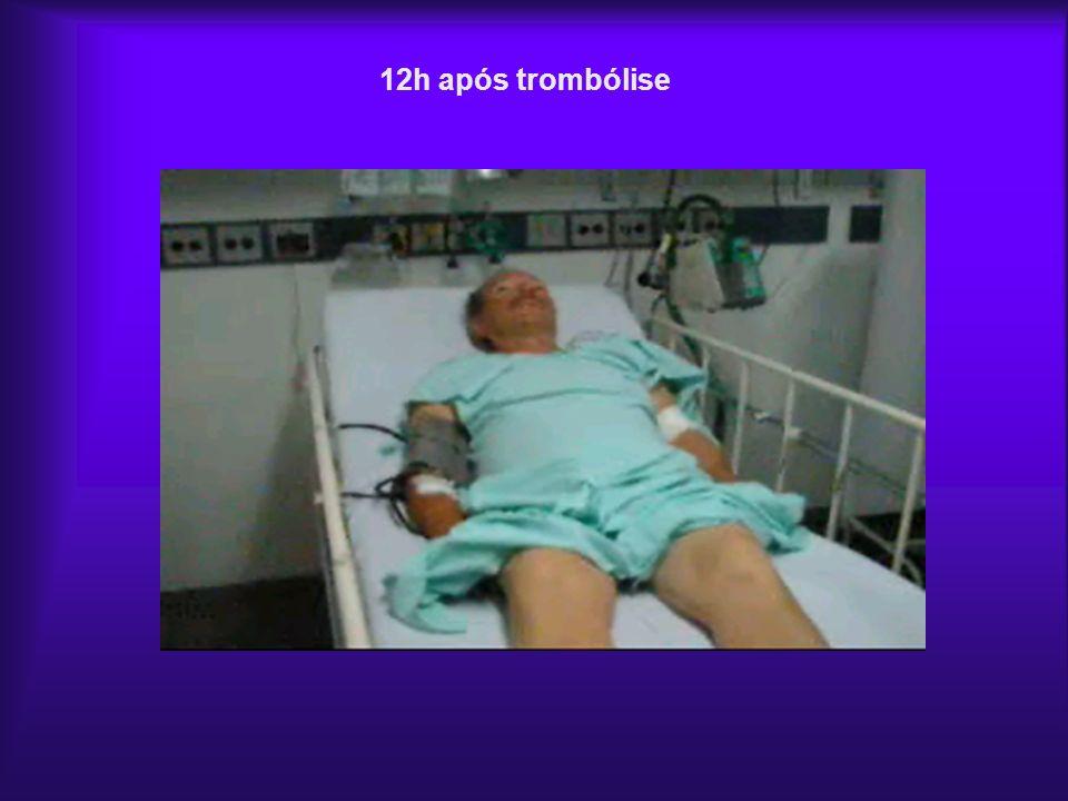 12h após trombólise
