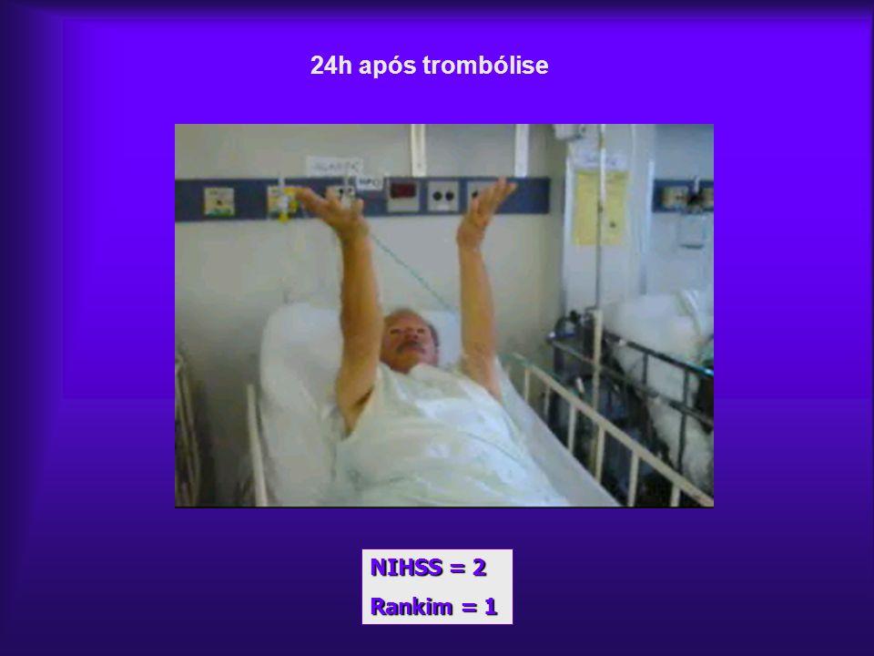 24h após trombólise NIHSS = 2 Rankim = 1