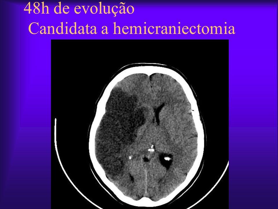 48h de evolução Candidata a hemicraniectomia