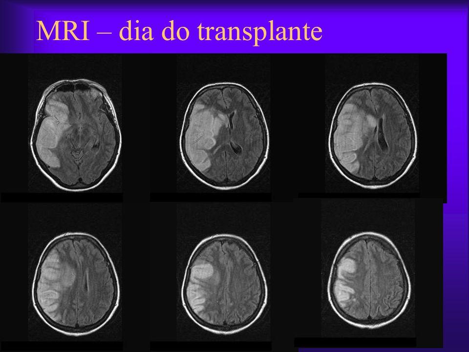 MRI – dia do transplante