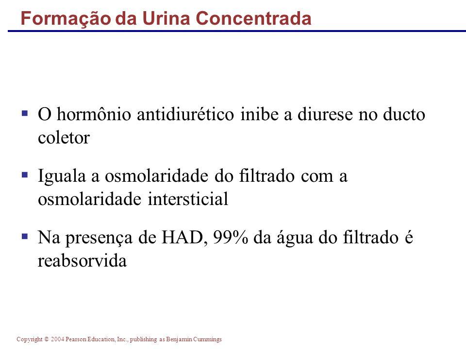 Formação da Urina Concentrada