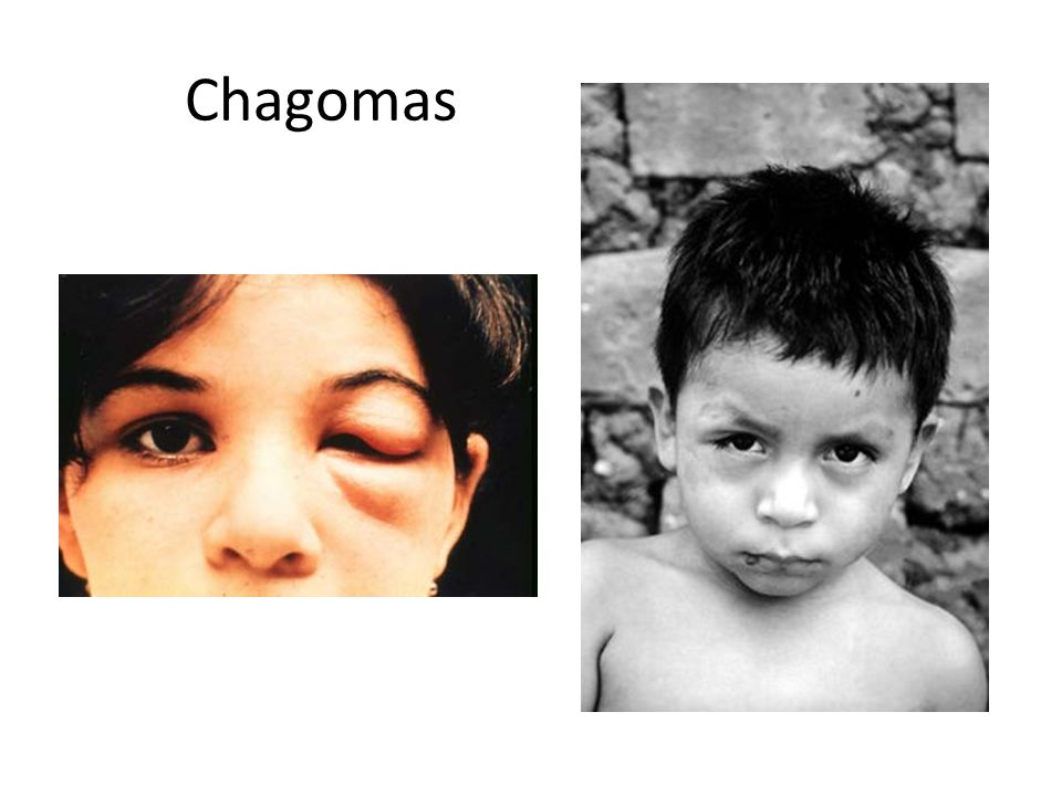 Chagomas