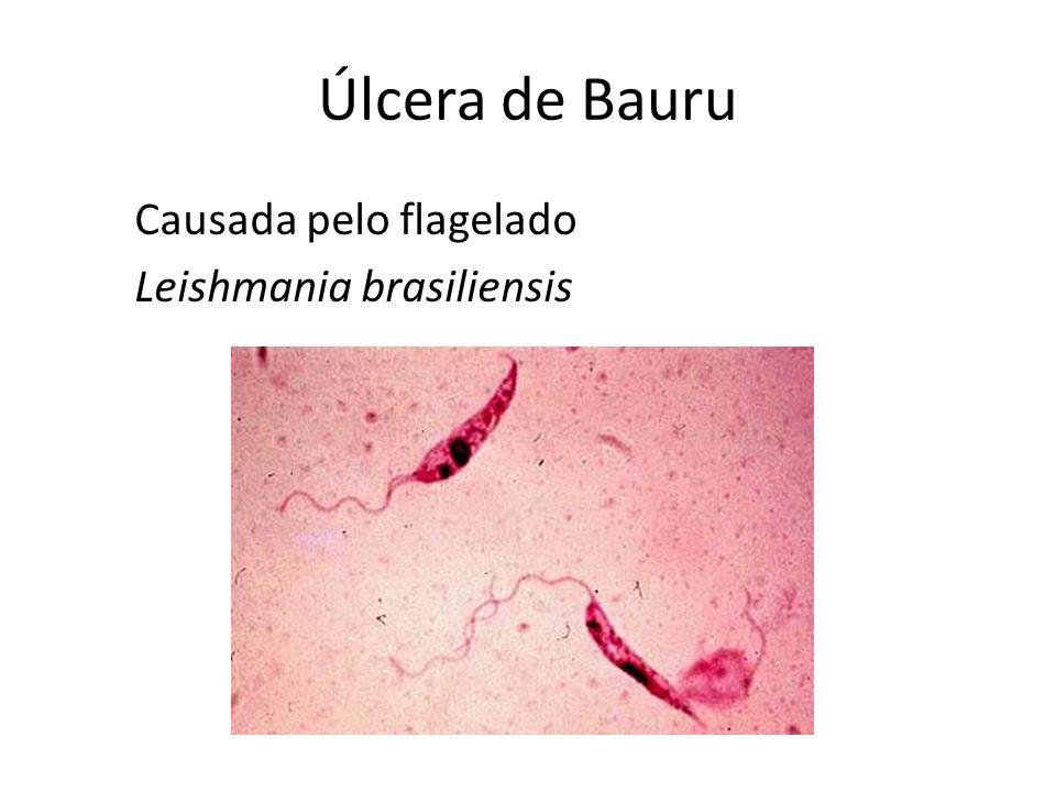 Úlcera de Bauru Causada pelo flagelado Leishmania brasiliensis
