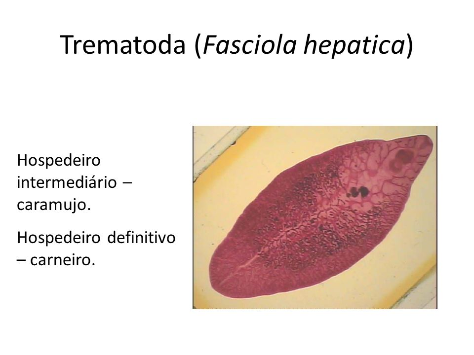 Trematoda (Fasciola hepatica)
