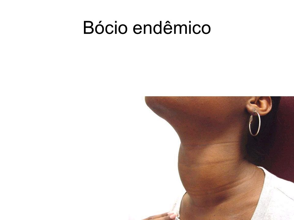 Bócio endêmico