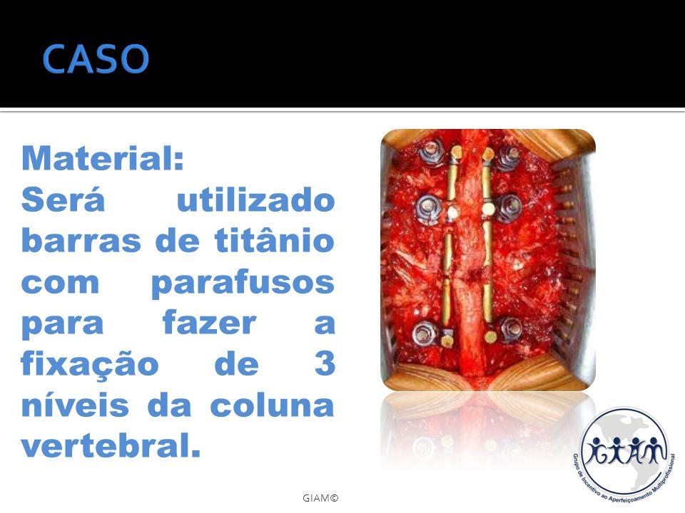 CASO Material: Será utilizado barras de titânio com parafusos para fazer a fixação de 3 níveis da coluna vertebral.