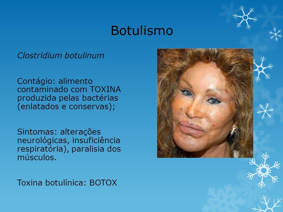 Botulismo Clostridium botulinum