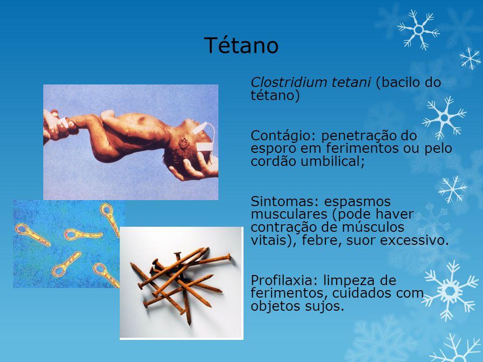 Tétano Clostridium tetani (bacilo do tétano)