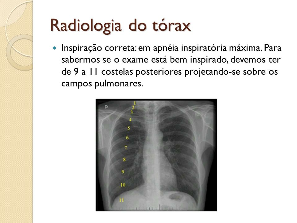 Radiologia do tórax