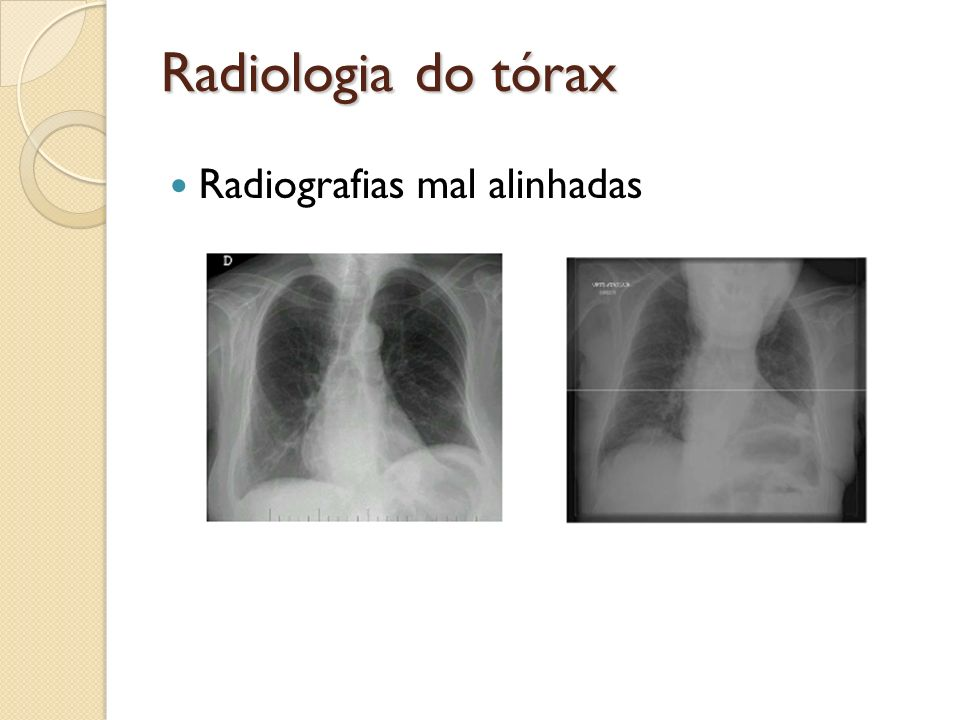 Radiologia do tórax Radiografias mal alinhadas