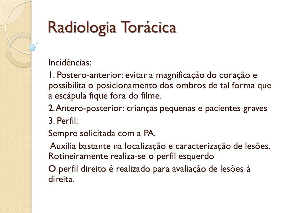 Radiologia Torácica Incidências:
