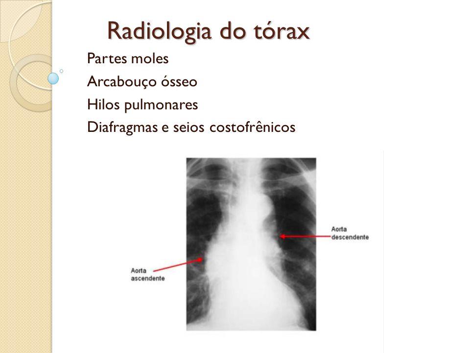 Radiologia do tórax Partes moles Arcabouço ósseo Hilos pulmonares