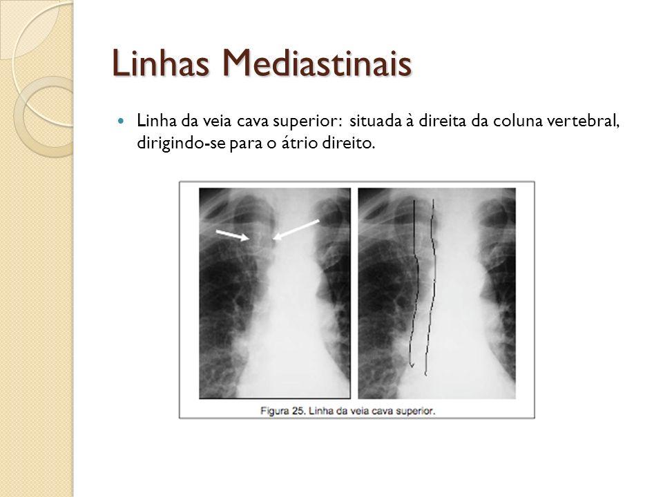 Linhas MediastinaisLinha da veia cava superior: situada à direita da coluna vertebral, dirigindo-se para o átrio direito.