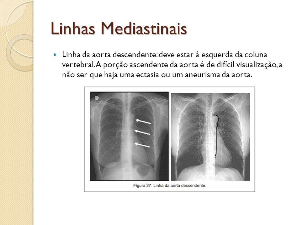 Linhas Mediastinais